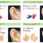 高度難聴で小型耳あな型補聴器を